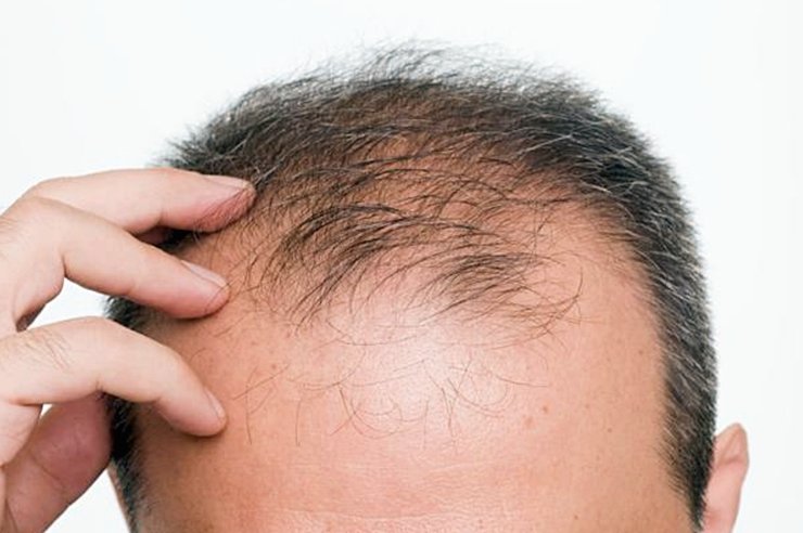 A biochemical substance, which can treat hair loss, has been developed by South Korean researchers led by Yonsei University's professor Choi Kang-yeol.